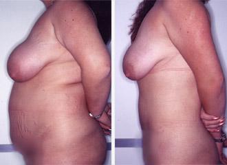 Tratamiento cáncer de mama North Bergen NJ -