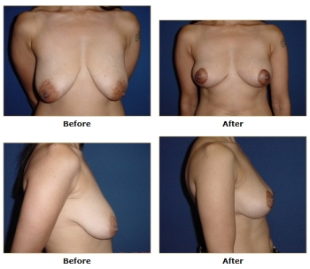 what is breast induration