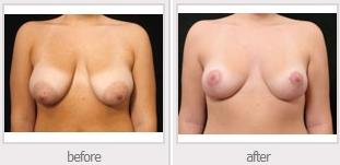 Procedimiento de mejora de senos en Chicago