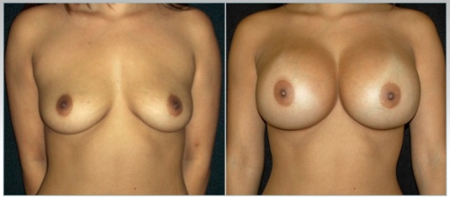 Augmentation breast surgeon california