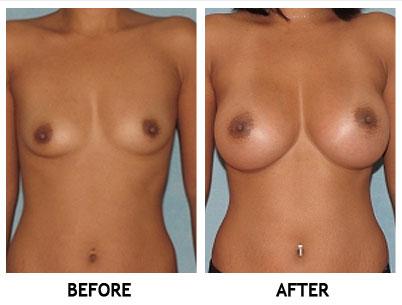 Aumento de senos en Atlanta Georgia por el Dr Dianne