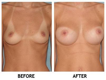 Aumento de senos Mableton GA - Aumento de Senos,