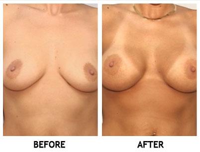 Vinings georgia implantes mamarios