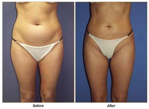 Breast Implants Marina Del Rey Tummy Tuck Marina Del Rey