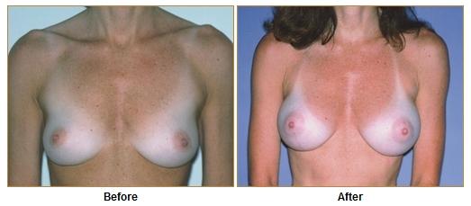 Cirujanos de realce de senos en los angeles