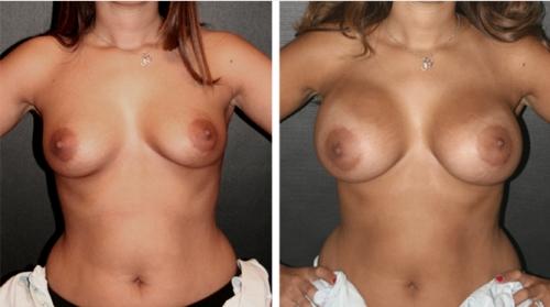 Implantes Mamarios: Anatmicos o Redondos? - Cirujano