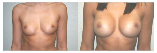 Implantes de senos St. george