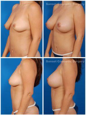 Implante de senos en los angeles