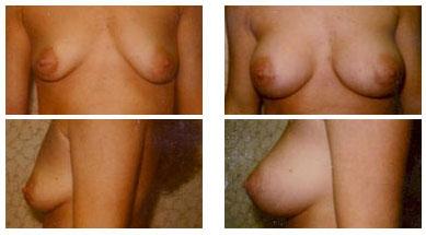 Aumento de senos ne ga